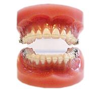 矯正歯科装置の画像